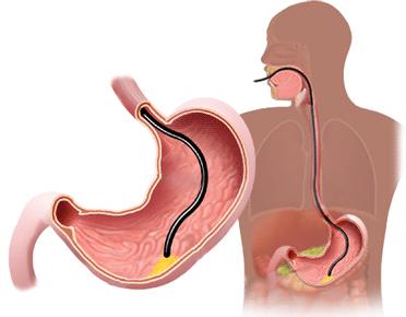 digestiva-alta