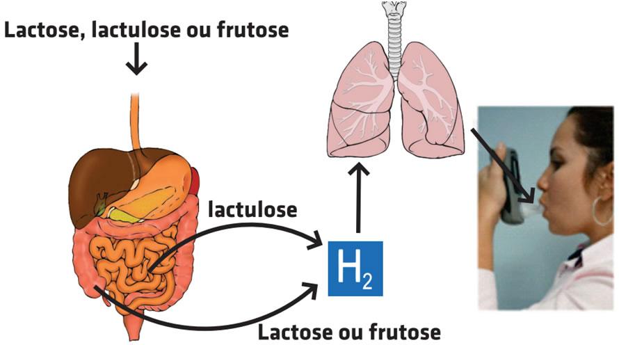 hidrogenio-expirado