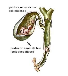 calculos-vesicula-biliar